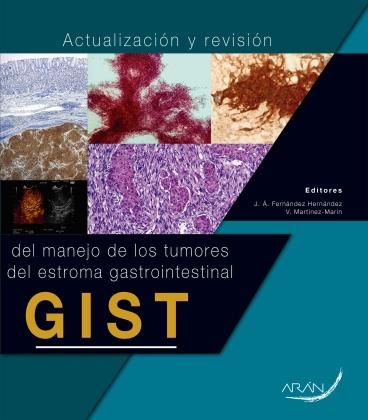 Actualización y revisión del manejo de los tumores del estroma gastrointestinal GIST