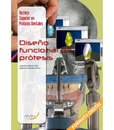 Diseno Funcional de Prótesis